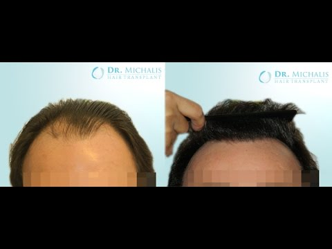 3200 Grafts FUE Hair Transplant unshaven respectively without shaving head/recipient area