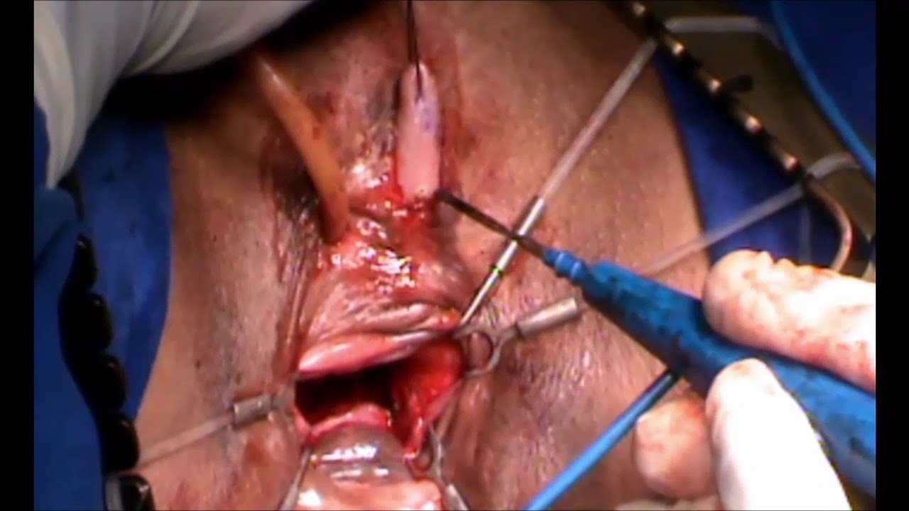 Advance Sex Reassignment Surgery Techniques