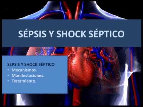 S 233 Psis Y Shock S 233 Ptico Youtube