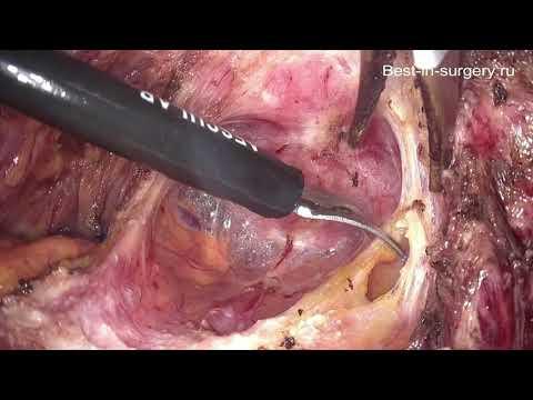 Лапароскопическая нервсберегающая резекция прямой кишки в лечении ретроцервикального эндометриоза