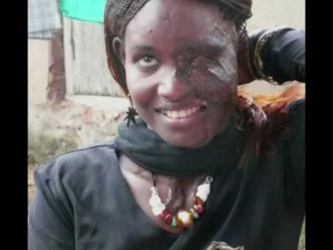 Disfigured Faces Cannot Disguise Beauty - [TRIGGER WARNING ...