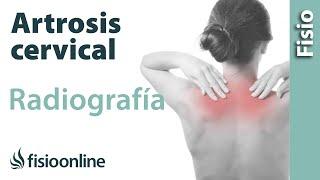 En columna artritis y mi cuello