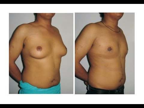 GYNECOMASTIA SURGERY: Beware of False 'Reviews': Dr JB Ratti VITAL CLINIC