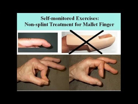 Mallet finger injury no splint treatment by hand exercises. Extensor tendon trauma at DIP joint.