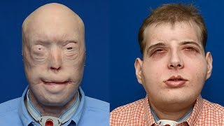 10 Most Surprising Face Transplants Ever || Pastimers
