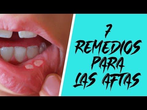 7 remedios caseros para curar las AFTAS que salen en la boca