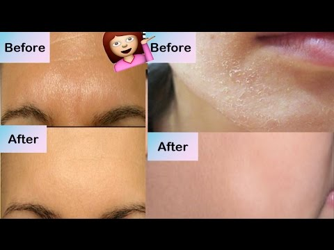 How To Get Rid From Oily Dry Skin Instantly