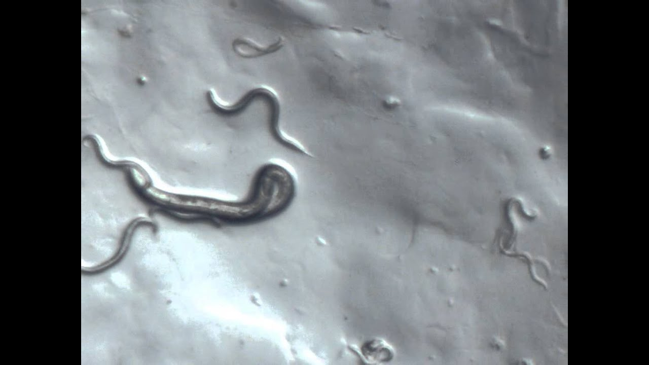 C  Elegans Under Microscope