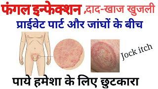 Fungle Infection Male Genital | जांघो के बीच दाद-खाज खुजली से पाये हमेशा के लिए छुटकारा। Jock itch