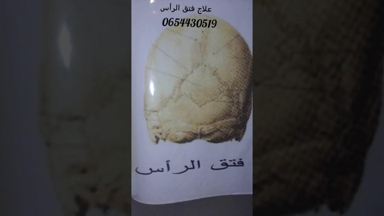 علاج فتق الرأس 0654430519 Youtube