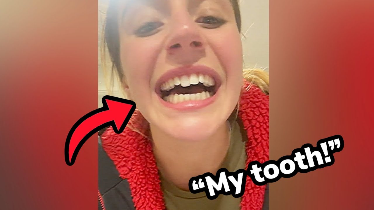 Woman Knocks Tooth Out And Fixes It Using Retainer! Orthodontist Reacts!