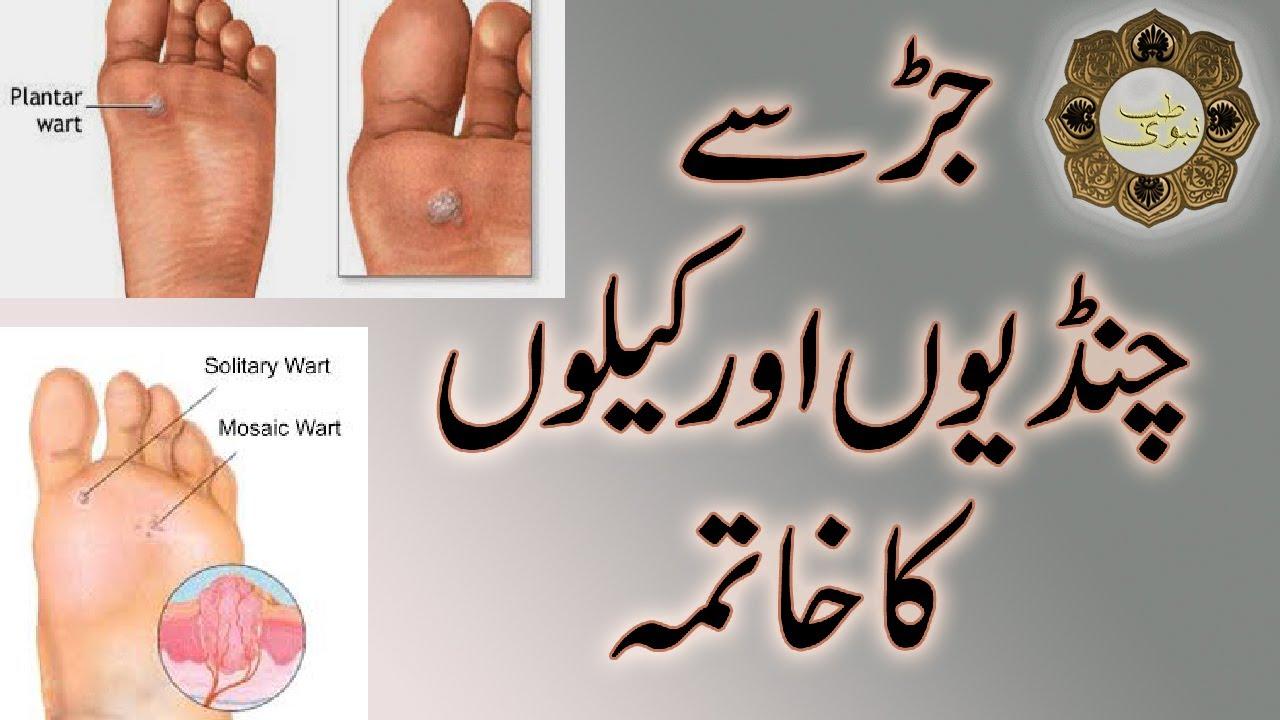 warts ka treatment in urdu)