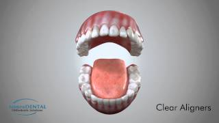Clear Aligners - Orthodontic Appliance Demo