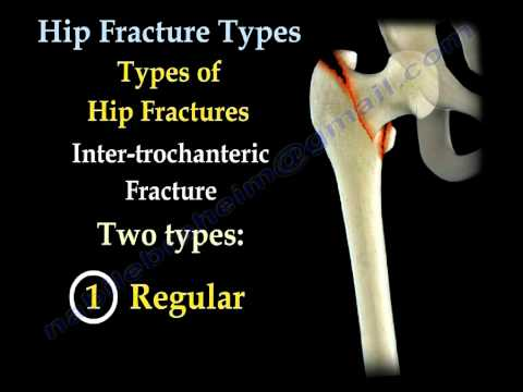 Hip Fractures Types And Fixation