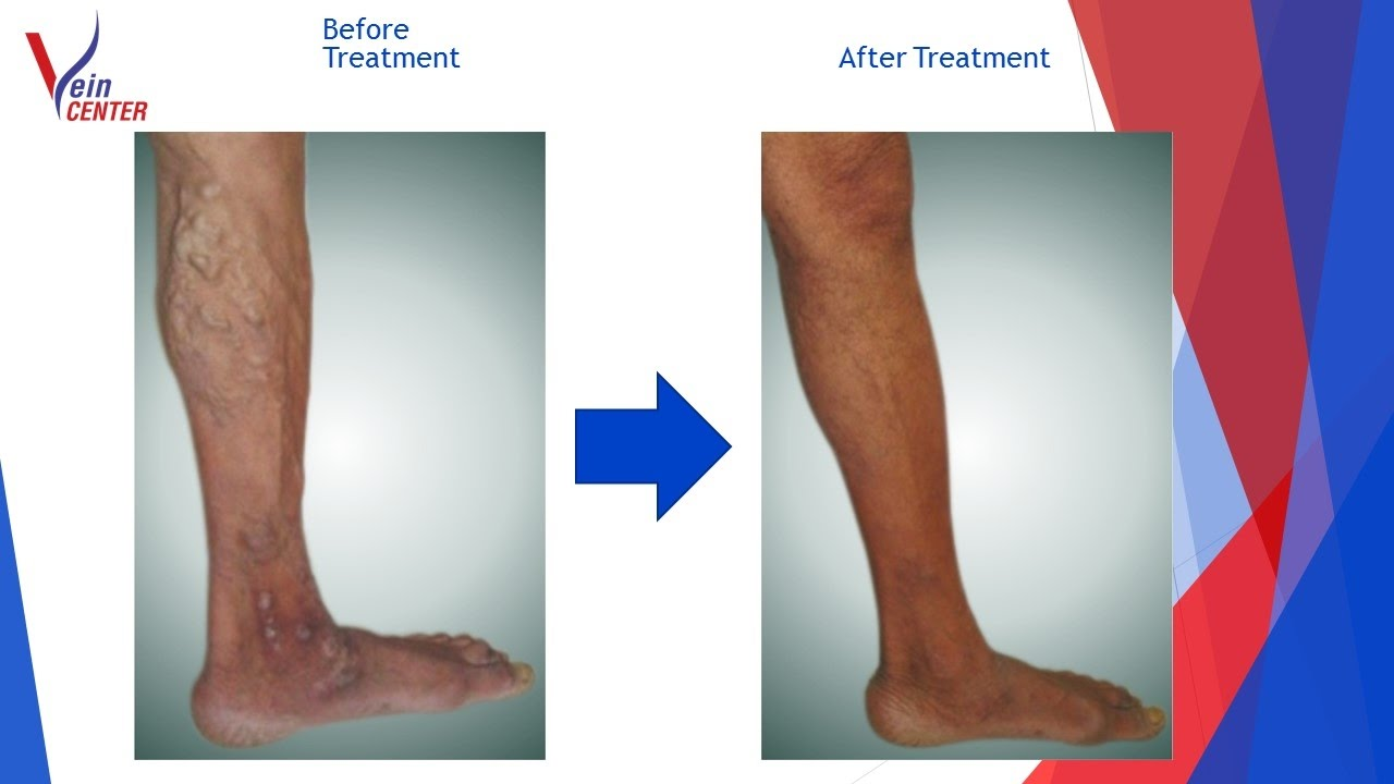varicose veins laser treatment aftercare