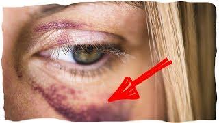 видео Как убрать фингал под глазом быстро в домашних условиях?- Наш секрет