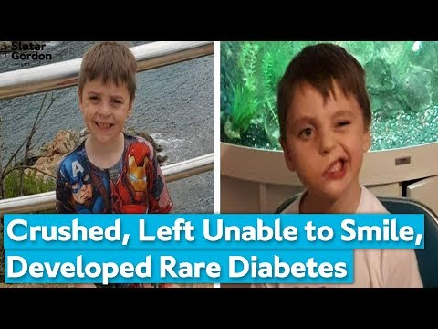 diabetes-and-facial-paralysis-|-boy-crushed-by-arcade-machine-on-holiday