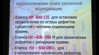 14 Федотов Л Е    Желудочное кровотечение, язва желудка, клипирование