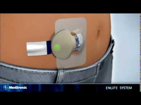 How to insert the Medtronic MiniMed Enlite sensor - diabetes therapy