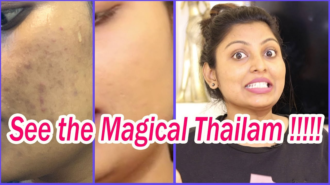 No Scars Cream Review In Tamil No Scars Side Effects Medicine