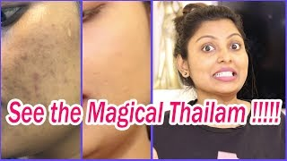 how to remove scars from face in tamil  Remove Dark spot   Black Patches  Wrinkles  Get Glow Skin thumbnail