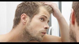 زراعة الشعر.. العلاج الوحيد لمحاربة آفة الصلع