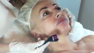 Dermaroller - mezoterapia mikroigłowa (micro-needle therapy)