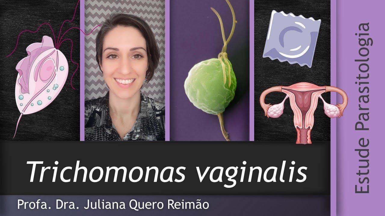 vetés Trichomonas ejakulátum