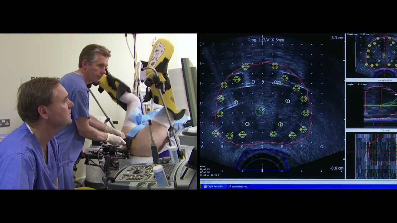 4d Brachytherapy The Patients Film Prostate Cancer