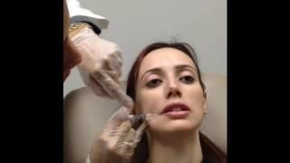 Radiesse smile line & Restylane lip filler at Mahajan Cosmetic Center