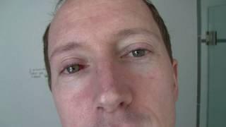 Updated, Subconjunctival hemorrhage - burst blood vessel in my eye