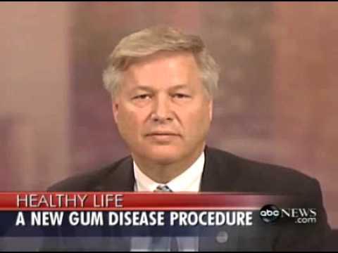 Denver CO Dentist Shares ABC News Video On Lanap Laser Gum Surgery