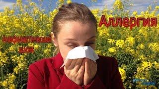 видео Анафилактический шок: симптомы, причины развития, степени и формы, неотложная помощь при анафилактическом шоке