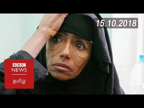 Yemen could be worst famine in 100 years | BBC Tamil Latest News | பிபிசி தமிழ் செய்தியறிக்கை |