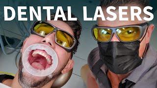 Dental Laser and Veneers Transform this GUMMY SMILE! - 😁