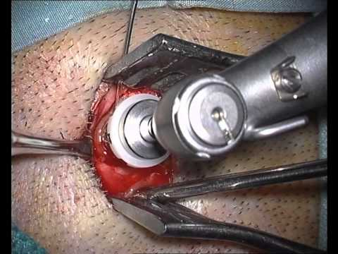 Tissue preservation surgery for bone anchored hearing implant installation