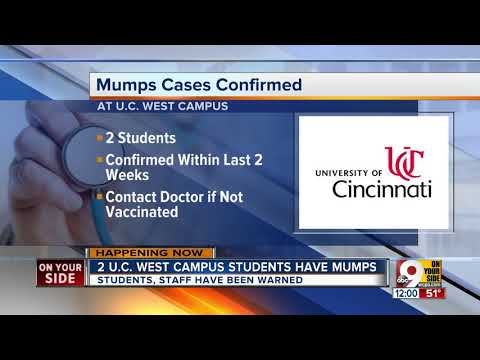 University of Cincinnati official: Two cases of mumps reported on campus
