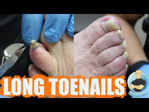 TRIMMING SUPER THICK AND LONG TOENAILS