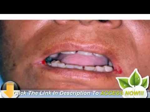 cracked corner of mouth or cold sore