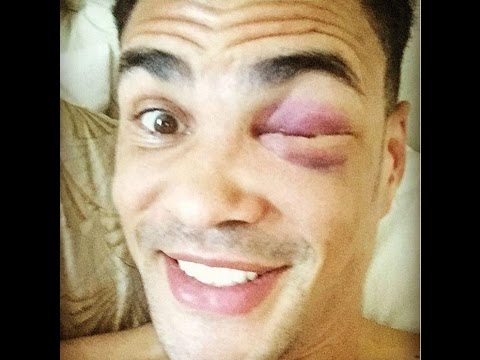 ANTHONY OGOGO FRACTURED EYE SOCKET - END OF CAREER???