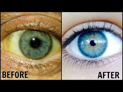 How To Whiten the Whites Of Your Eyes Naturally! │ Get Rid of Dull Yellow Eyes │Sparkling White Eyes