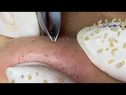 Addicted To Blackheads On Chin, Forehead And Nose ( 183) | Loan Nguyen