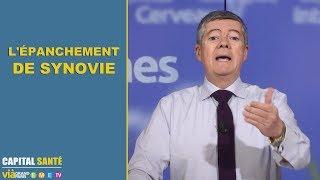 Epanchement de synovie - Jean claude Durousseaud - 2 minutes pour comprendre