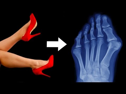 What Your High Heels Are Doing To Your Feet