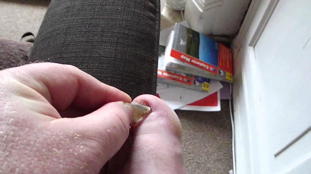 Big Toe nail coming off - YouTube