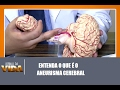 Neuro esclarece sobre aneurisma cerebral - Jornal da Vida 15/02/2017
