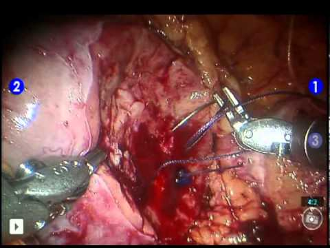 Robotic Partial Nephrectomy - daVinci Partial Nephrectomy for Kidney Cancer