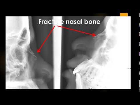 CASE 717 Fracture Nasal Bone