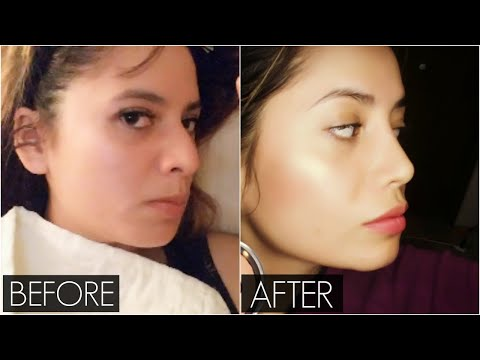 My Rhinoplasty Experience in Canada VLOG   Surgery to One Month Post Op   Nose Job Before and After