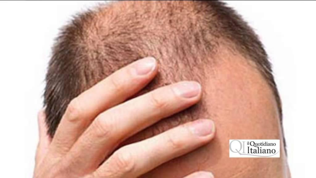 trapianto capelli pericoloso erezione